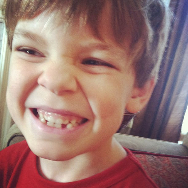 Noah-teeth-jan2012